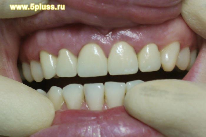 Crest 3 D White - отбеливающие полоски для зубов отзывы,